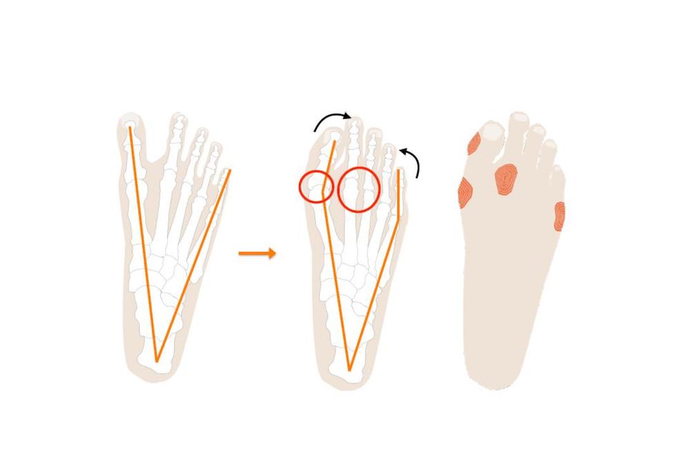 Natürliche Fußform